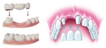 tooth implants bridge and crown