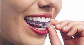 bruxism teeth grinding