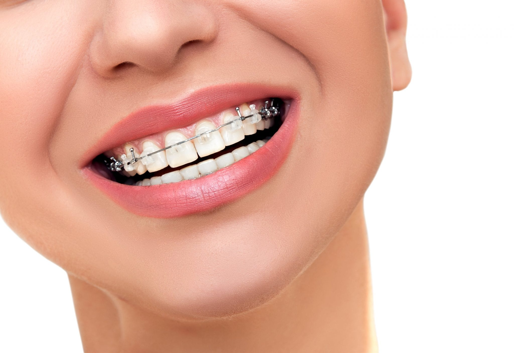 Closeup Beautiful Female Smile with Transparent Ceramic and Metal Braces on Teeth.
