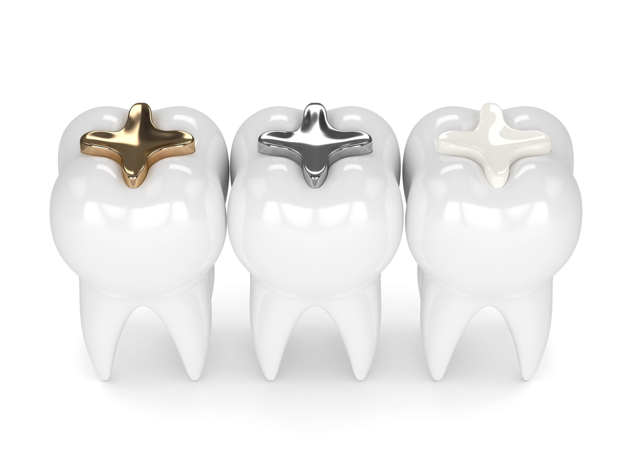 3d Render Of Teeth With Gold, Amalgam And Composite Inlay Dental