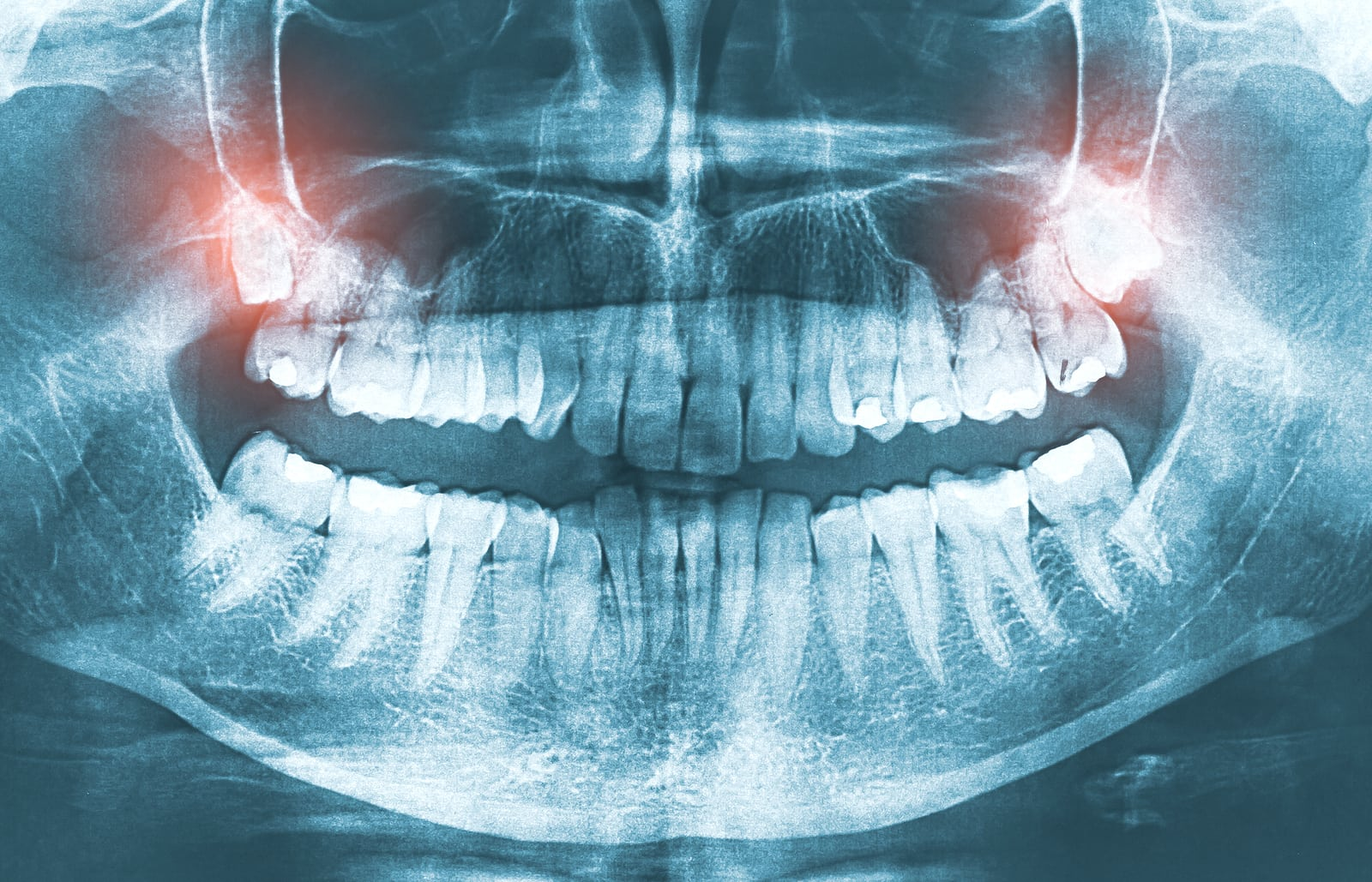 5 Things You Need To Know About Wisdom Teeth