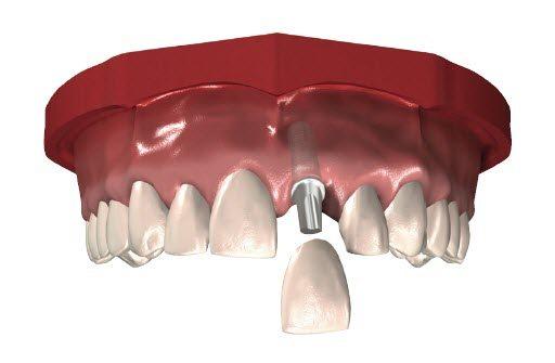 crown implant