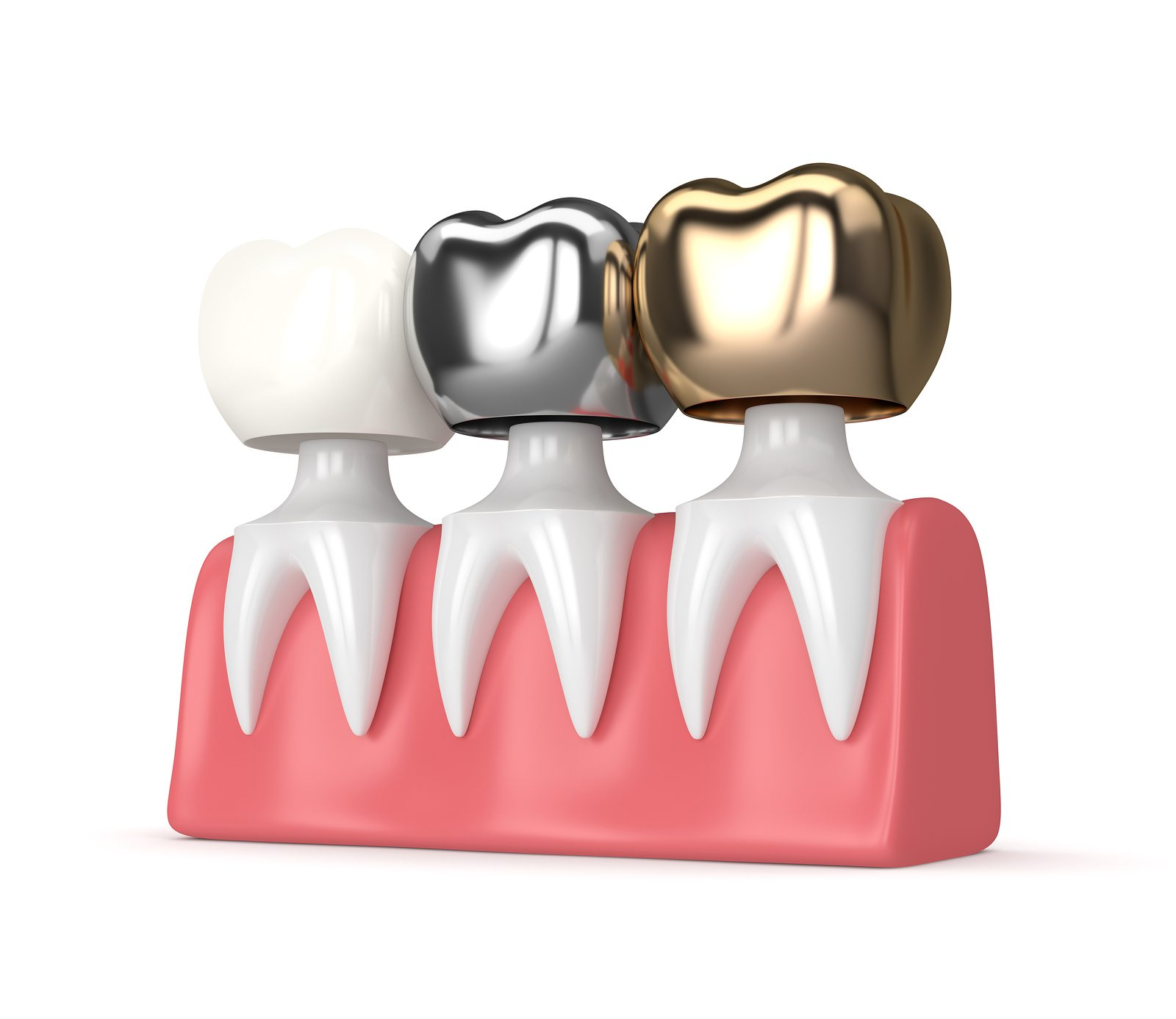 3d render of teeth with gold, amalgam and composite dental crown in gums over white background