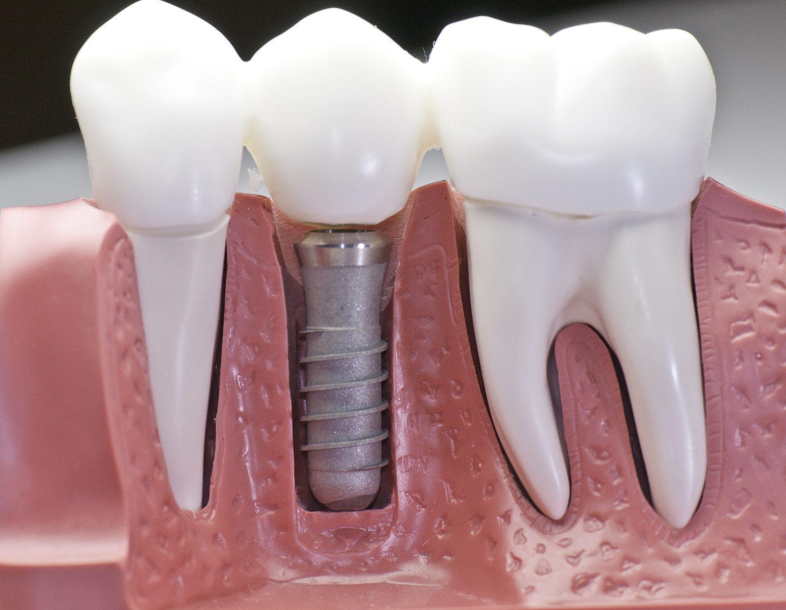 Implant Crossview