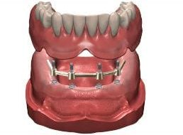 removable denture support bar