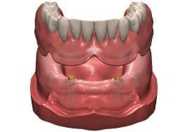 removable denture